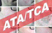 Peeling de ATA TCA