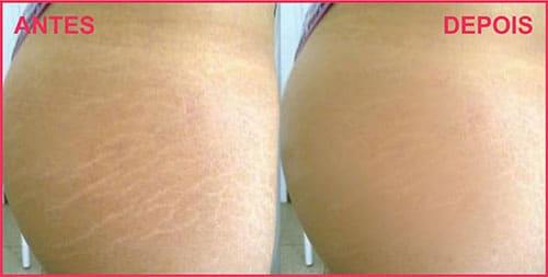 Microagulhamento para Estrias Antes e Depois