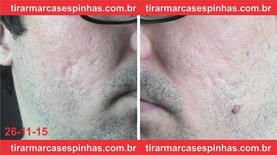 Fotos antes tratamento Dermaroller