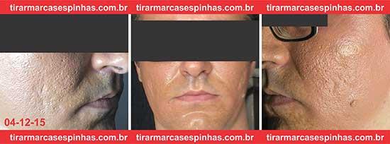 Fotos depois 1 Sessão Microagulhamento para Cicatrizes de Acne