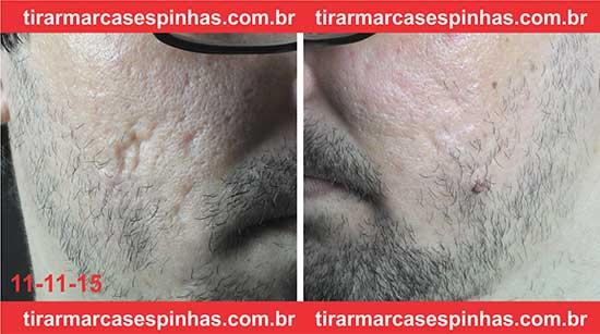 Microagulhamento no rosto