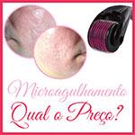Preço Microagulhamento Dermaroller