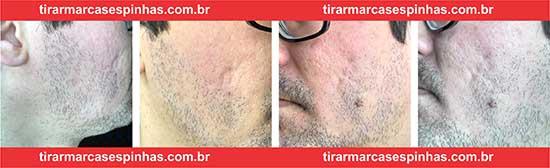 Fotos cicatrizes espinhas