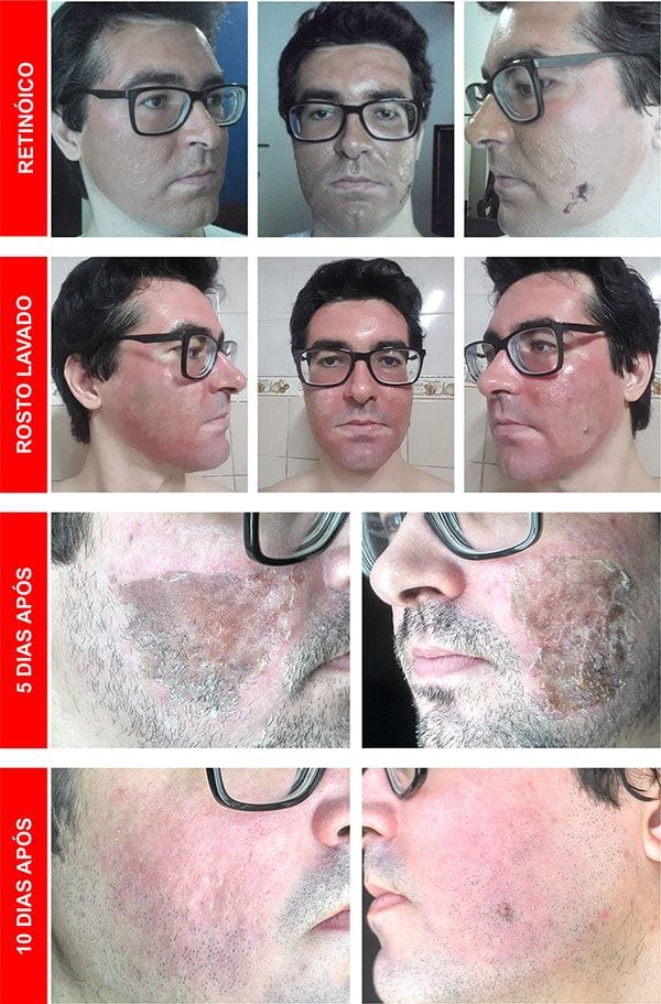 Sessão 9 Microagulhamento para Cicatrizes de Acne