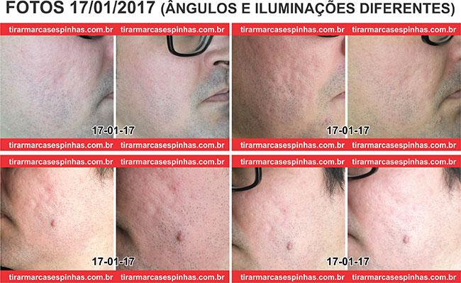 Microagulhamento No Rosto Tirar Marcas De Espinhas E Cicatrizes