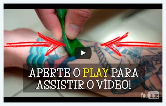 Remoção de Tatuagem sem Laser