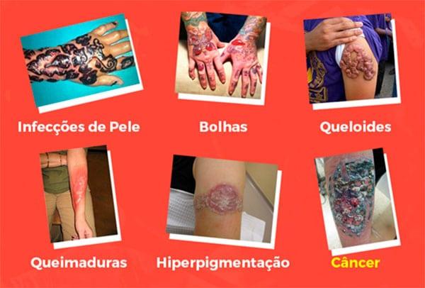 Perigos Remoção Tatuagens Laser