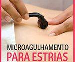 Microagulhamento Estrias