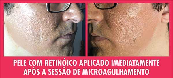 Microagulhamento com Retinóico