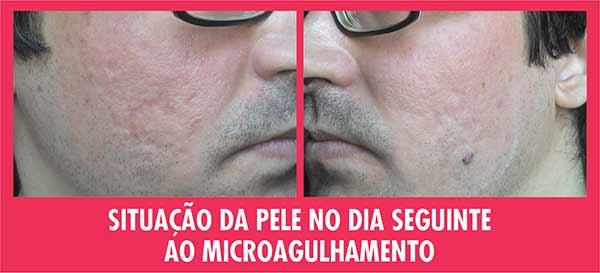 Situação Pele Dia Seguinte Microagulhamento