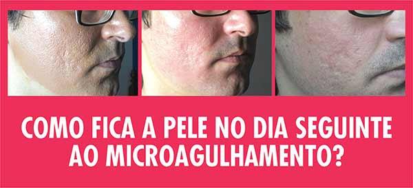 Como Fica Pele Dia Seguinte Microagulhamento